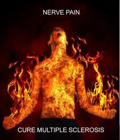 Multiple Sclerosis...nerve pain