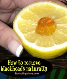 "DIY blackheads removal remedy: take a 1/2 of a lemon and add a drop of honey. ""Rub"" gently all over your face. Allow to dry then wash with lukewarm water. Done."