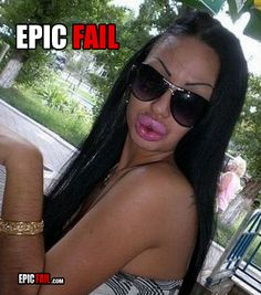 epic beautification fail big lips hairy arms eyebrows