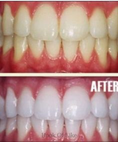 DIY Teeth Whitening #diy #teeth This homemade tooth whitener is perfect! I now use it every 2 months and EVERYONE asks me how my teeth are sooo bright white!