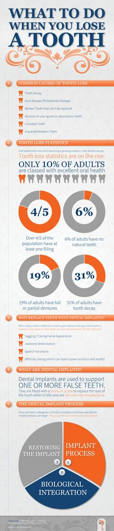 """LIKE and SHARE: """"What to do when you lose a tooth"""": An instructo-graphic by Ollie & Darsh. See also our """"Tell me about"""" - Cracked teeth: http://www.dentalhealth.org/tell-me-about/topic/routine-treatment/cracked-teeth"""