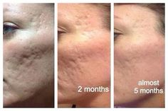 NeriumAD is responsible for this type of result.  Reduction in acne scarring, it's life changing for so many. Contact me for questions & info: Www.youngnskin.nerium.com Mrsschraut@gmail.com