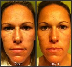 nerium-before-and-after  www.KathleenJohnson.nerium.com