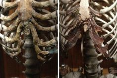 From the MutterMuseum - the deformed ribcage of a woman who wore corsets vs a normal ribcage