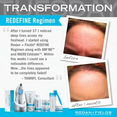 Problems with wrinkles?  This amazing regimen really works!!