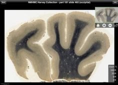 New iPad app lets you examine slices of Albert Einstein's brain