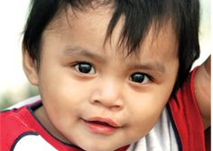 Bryan had trouble eating and drinking, but his family was too poor tp get surgery for his cleft lip.  http://www.operationsmile.org/living_proof/patient-stories/bryan.html