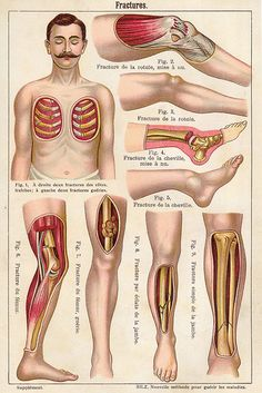fractures ...