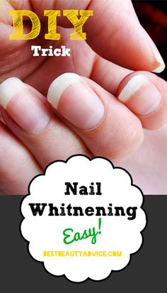 Nail Whitening Trick.  OP says:  Having white fingernails doesn't always come naturally.  Something that I learned while in esthetics school, from someone that I was practicing pedicures on, was how to whiten your fingernails with Polident. Remove Stains, Nail Tips, Diy Whitening Strips, Hair Colors, Beauty Tips, Diy Nail Whitening, Diy Nail Polish Color, Medicine Cabinets, Nails