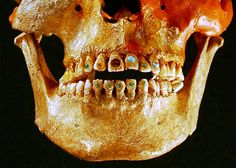 """""""Advanced dentistry techniques allowed Native Americans to inset gemstones to their teeth as far back as 2,500 years ago. The early dentists used a drill-like device with a hard stone such as obsidian, which is capable of puncturing bone. The ornamental stones—including jade—were attached with an adhesive made out of natural resins, such as plant sap, which was mixed with other chemicals and crushed bones."""""""