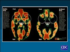 Case studies involving bipolar disorder