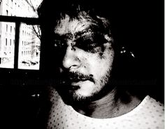 Norman Reedus self portrait following car accident in 2005.