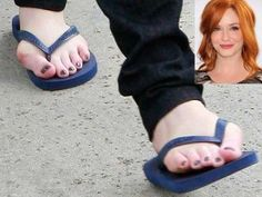 Christina Hendricks' bunions! Oh dear Bunions - ouch looks painful!! if you would like to be able to wear shoes, sandals and boots again without being in pain take a look at Meanfeet's range of Wide Fitting Bunion Relief Footwear at www.meanfeet.com
