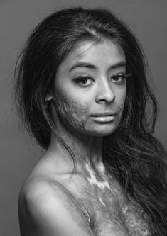 "This beautiful model, a burn survivor, did this photo shoot to, in her own words, ""prove that scars do not change a person, they make that person who they become.""    What a gorgeous woman."