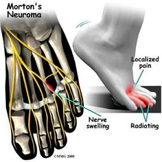 Morton's Neuroma is a condition that affects one of the #nerves that run between the long bones (metatarsals) in the foot, Prevent this condition with the help of kenkoh #shoes, the ultimate healthy shoes for you http://www.kenkoh.co.uk/store/