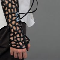 Osteoid is a 3D-printed cast that uses ultrasound to heal your bones 40% faster