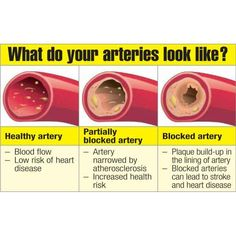 Top 6 Artery Cleansing Foods - healthy life