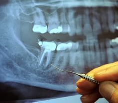 97% of Terminal Cancer Patients Previously Had This Dental Procedure... ~ RiseEarth