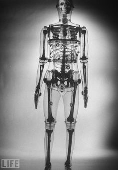 Plastic skeleton showing the spots of body most likely to be affected by radioactive fallout in 1961.