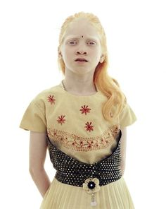 In types with slight pigmentation, hair appears more yellow or red-tinged and vision may be better albino beauti, face, albino girl, ginger, indian albino, beauti peopl, beauti albino, albino white, albino people