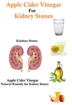 Is Pineapple Good For Kidney Stones forecasting
