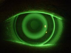 Put A Camera On Your Eyeball | Google filed a patent for a camera-containing contact lens.