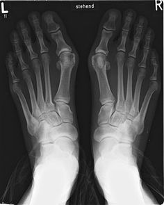 FAQ's about Bunions