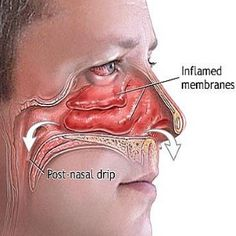 Natural Cures For Sinus Infection - Ways To Treat Sinus Infection | Find Home Remedy