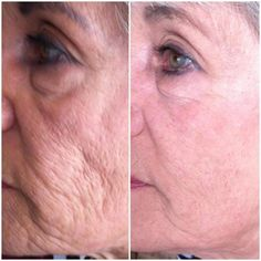 30 days! Check out these results!!  www.wrinkleresults.nerium.com