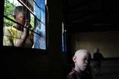 Being an albino in Africa is not only difficult but also very dangerous.   There is a real hunt on them in Tanzania and Burundi.   People believe that the body parts of albinos bring wealth and luck.   For example, fishermen are making fishing nets out of their hair because they believe it will bring abundance and lots of fish.   International organizations offer camps where albinos can live and be protected.