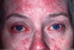 Ocular rosacea results in dry, burning, gritty eyes and eyelids, and can lead to serious eye complications. More than 50% rosacea patients have eye manifestations.    Photo courtesy of Dermquest.com  #rosacea  http://www.advancedskinwisdom.com/wordpress/2012/cosmetic-dermatologist-and-surgeon-nj/dermatology-what-productsprescriptions-work-best-for-reducing-the-redness-of-rosacea/