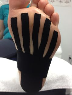 Did you know that Kinesio Taping is helpful in the healing process of plantar fasciitis ?