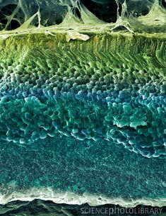 Coloured freeze-fracture scanning electron micrograph (SEM) of the layers of the retina,