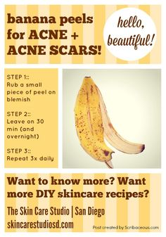 BANANA PEELS FOR ACNE + ACNE SCARS by skincarestudiosd.com   CLICK the pic or the link for more info >>> http://skincarestudiosd.com/banana-peels-for-acneacne-scars/