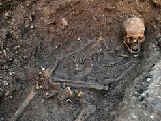 The body of King Richard III was found buried beneath a Leicester parking lot. It turns out that the stories about his deformity were more than Tudor propaganda - you can see his twisted spine, probably caused by scoliosis. He would likely have been a hunchback.  (AP Photo/ University of Leicester)