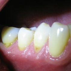 Reliable And Easy Treatments For Receding Gums