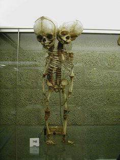 Conjoined twin skeleton