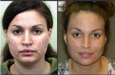 #Nerium is great for more than #antiaging. Here you see it's great for #acne.  :)    www.jill_simplylean.nerium.com