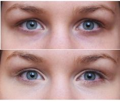 If you want to look years younger, get rid of those dark circles under your eyes.  There are proven solutions out there that are all-natural, herbal remedies, so what are you waiting for?  Click here now to find out more about the best-selling solution available today - by Dr. Charles Silverman.  http://get-rid-of.biz/How_To_Remove_Dark_Circles_Naturally.html