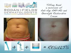 I had no idea our AMP-MD Roller could do this!! I knew it was transforming faces but this is crazy! Amazing results in only 4 sessions that would cost thousands to achieve using laser or surgery! Message me soon and get 10% off and FREE shipping! www.basicskincare101.myrandf.com
