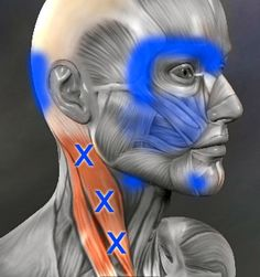 common trigger points in the neck and the referred pain pattern. can cause headaches.