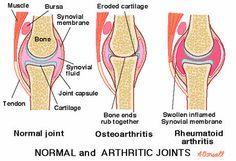 Yoga for Rheumatoid Arthritis: 8 Tips from an Instructor with Arthritis