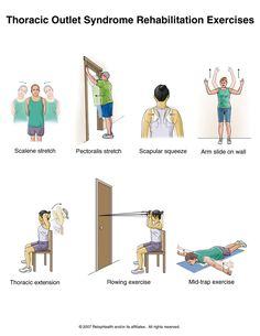 Thoracic Outlet PT exercises
