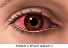 Natural Remedies for Pinkeye (Conjunctivitis)