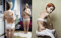 Bulimia Eating Disorder