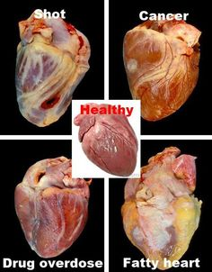 Various conditions of the Human Heart