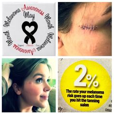 """May is skin cancer and melanoma awareness month. If I can get at least one person to stop tanning and to be """"sun safe,"""" then I'll feel accomplished. Think before you tan because """"pale skin is ugly"""" - it's better than a scarred face.  http://lifeandthoughtsofasororitygirl.blogspot.com/search?updated-min=2013-01-01T00:00:00-08:00=2014-01-01T00:00:00-08:00=4=1"""