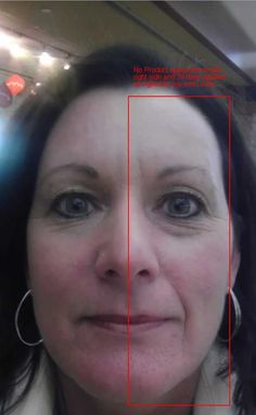 ... are left side of face 6 months right eye 30 days right side mouth area