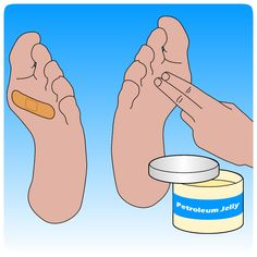 wikiHow to Prevent Foot Blisters -- via wikiHow.com