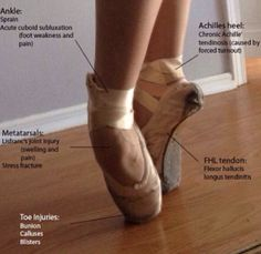 """ankle injuries incidence in dancing Ankle sprains, bruised toenails and sore backs are more the """"bread and   incidence and prevalence of musculoskeletal injury in ballet: a."""